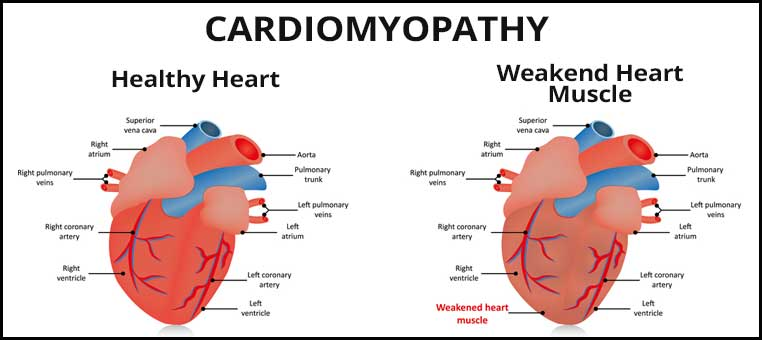 Graphic showing a healthy heart vs a heart with cobalt cardiomyopathy