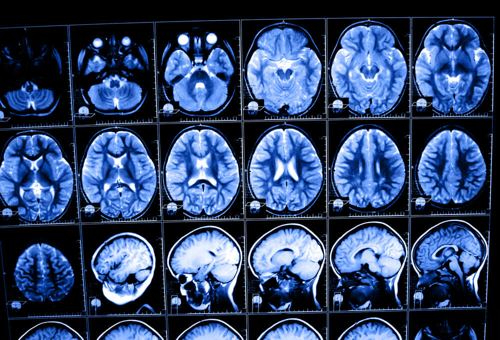 Medical images of brain